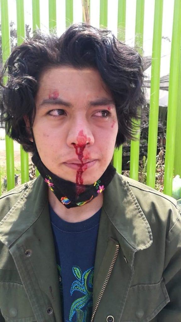 Ciclistas denunciaron que fueron agredidos a golpes durante una protesta en contra de la construcción de un puente vehicular en El Humedal de Xochimilco.