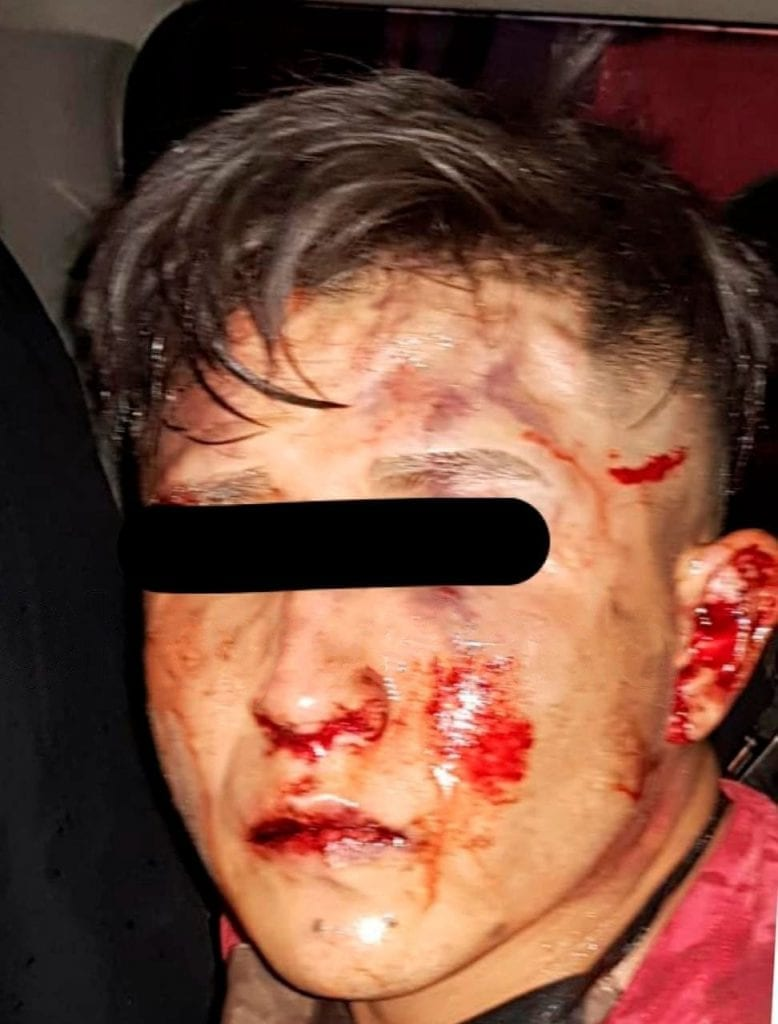 Justo cuando estaba cometiendo el robo de una camioneta de lujo, un hombre fue detenido por policías municipales de Coacalco, pero los vecinos comenzaron a golpearlo.