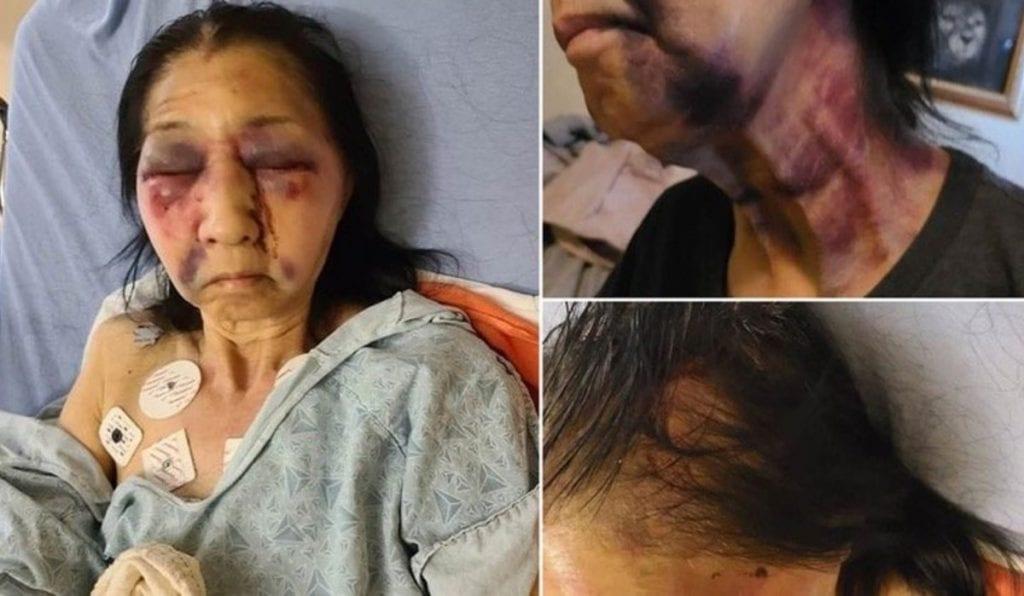 Una mexicana de 70 años de edad fue víctima de un crimen de odio en Los Ángeles, Estados Unidos, al ser confundida con una mujer de origen asiático y por ello fue brutalmente golpeada por una afroamericana.