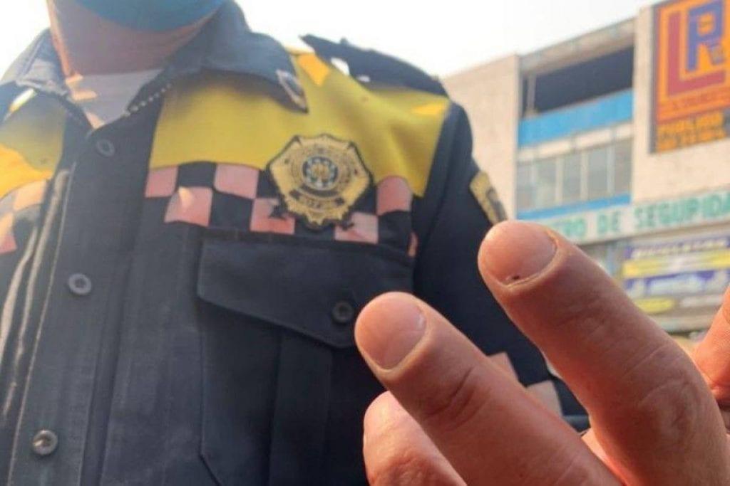 Un hombre y dos mujeres fueron detenidos y puestos a disposición del Ministerio Público después de que una de ellas mordió yarrancó el trozo de un dedo a un policía de tránsito, quien colocaba el inmovilizador a su auto ya que se encontraba estacionado en un lugar prohibido.